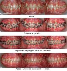 credit dentiste