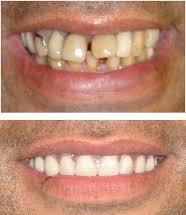 Crédit dentaire   retrouvez le sourire au meilleur taux ! f89015ed3910