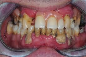 pret dentaire
