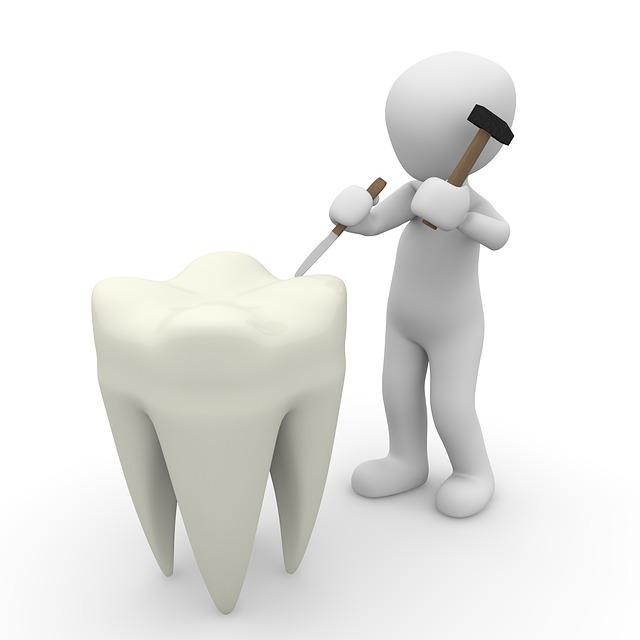 crédit pour refaire ses dents